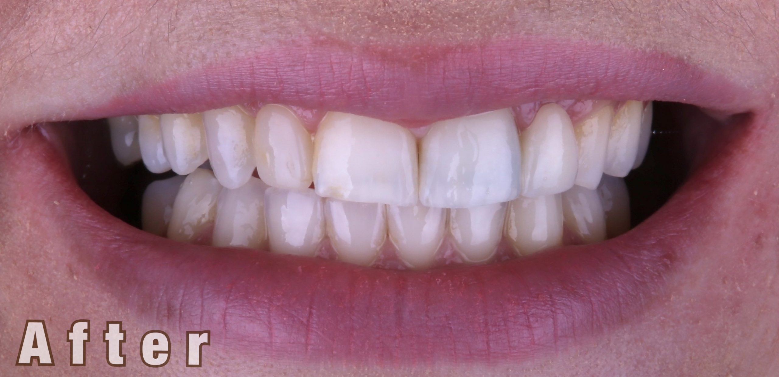 After Invisalign , whitening and Bonding