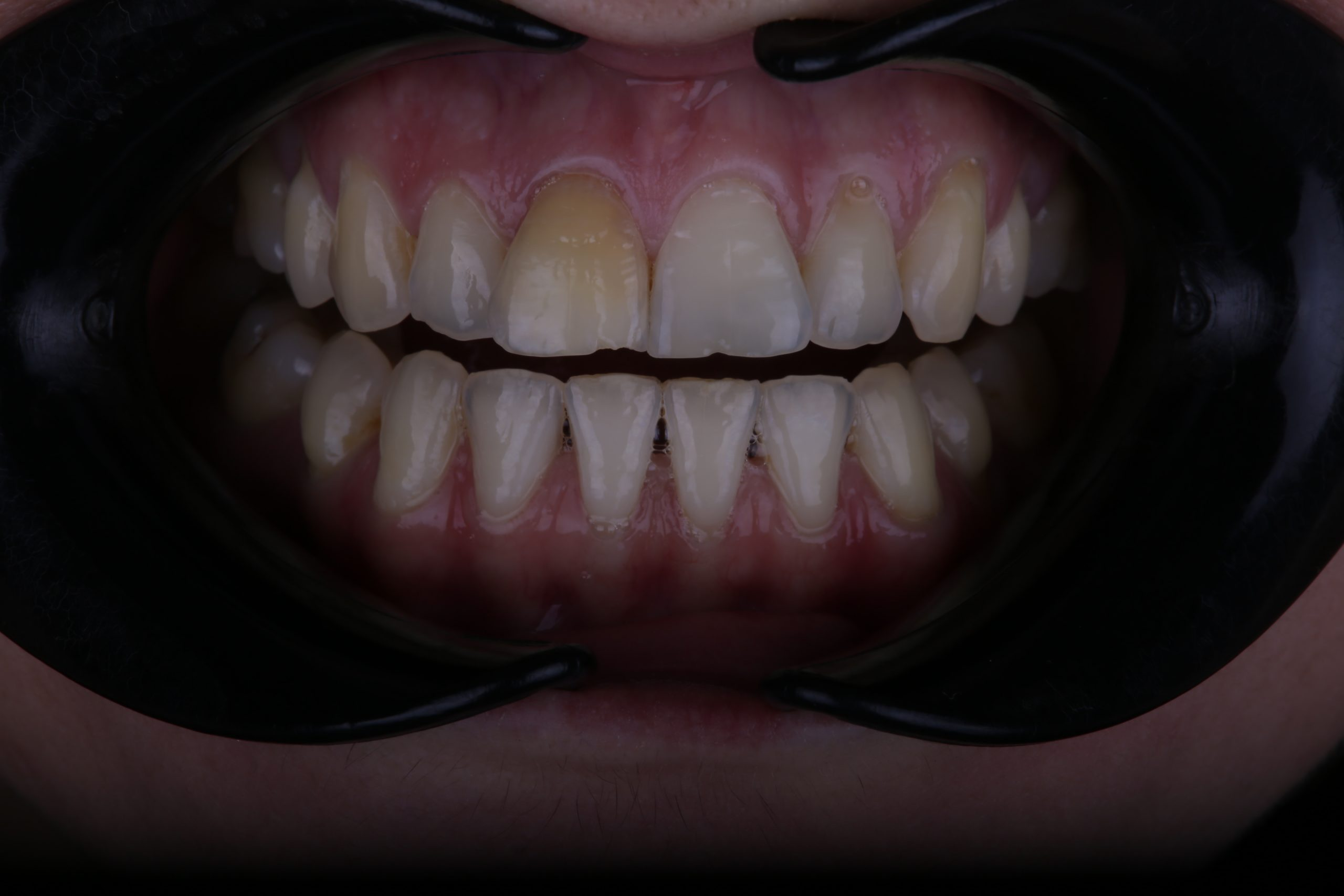Upper front discolored tooth