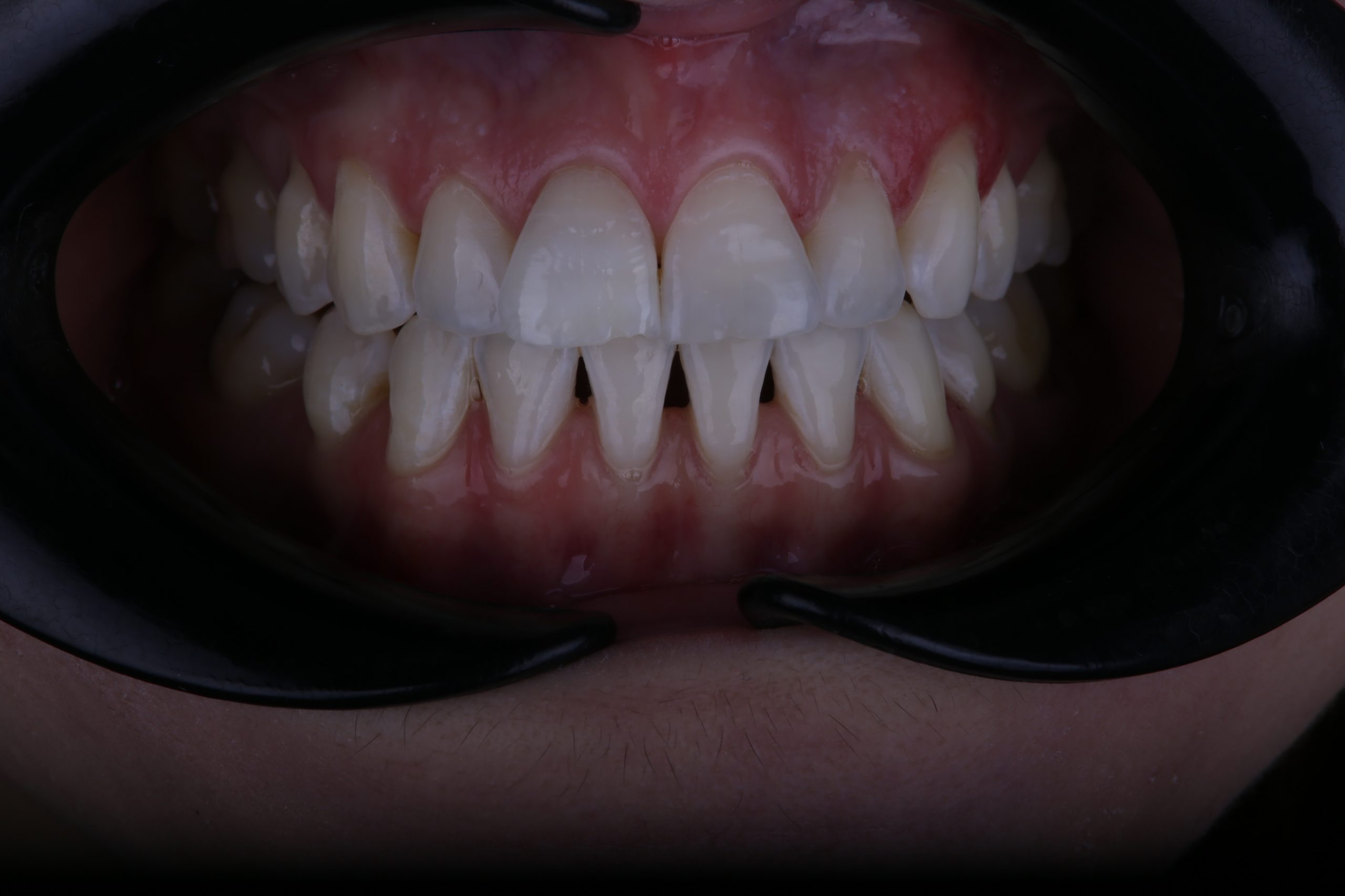 after 10 days of home whitening